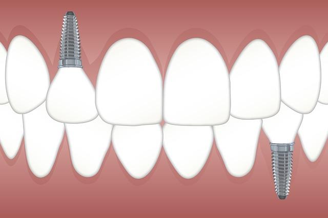 zubní implatáty